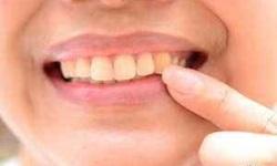 dente verde