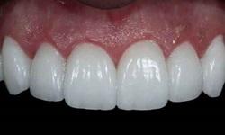 dentes de porcelana preço