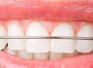 aparelho dental móvel