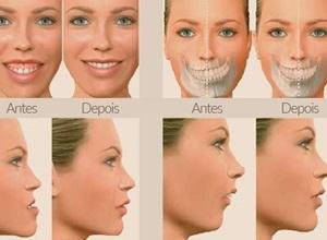 cirurgia buco maxilo facial