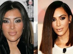cirurgia na bochecha antes e depois