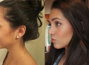 cirurgia nariz antes e depois