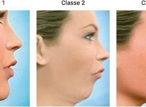 cirurgia ortognatica classe ii