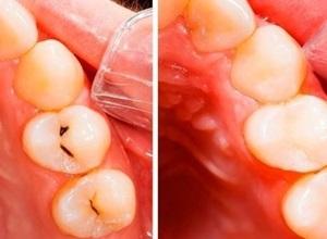 Dentes cariados como tratar