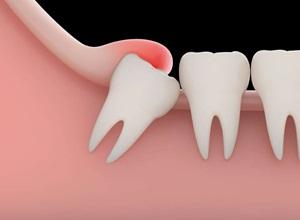 dente do juízo como parar a dor