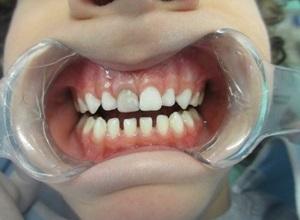 dente escurecido