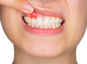 dente obturado doendo