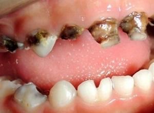 dente podre
