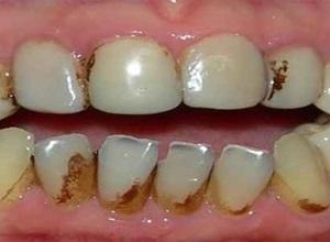 dente preto