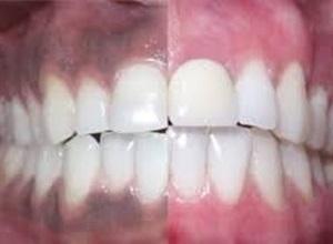 dente preto perto da gengiva