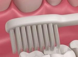 dente siso inflamado pode ser extraído