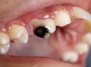 doença cárie dentaria