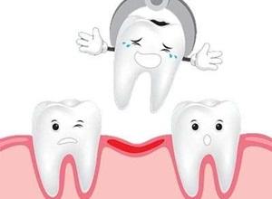 enxerto dentário