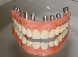 implantes detalhes