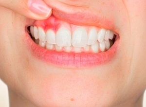 inflamação no dente como tratar
