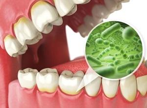 inflamação no dente remédio