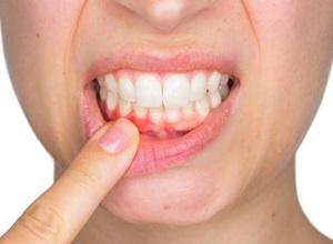 inflamação no nervo do dente
