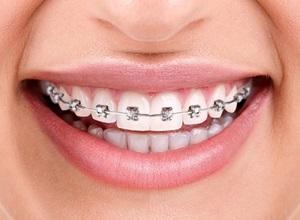 Plano odontológico cobre aparelho dentário