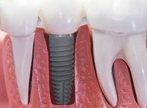 preço de um implante dentário