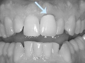 quanto custa uma coroa dentaria