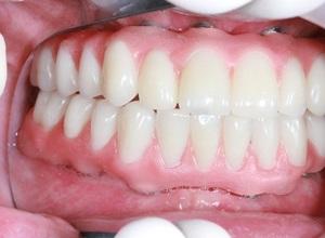 raspagem dental preço
