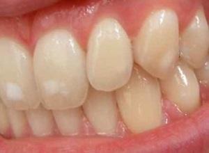 tirar mancha do dente