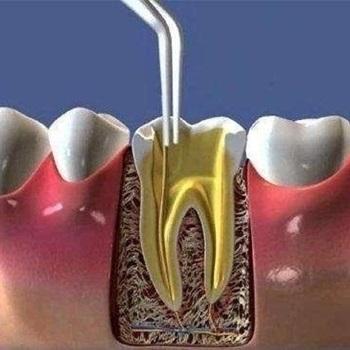 canal dentário