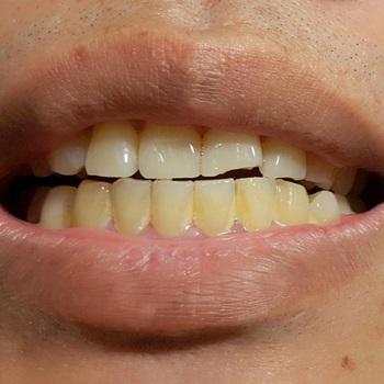 dente com tártaro como tratar