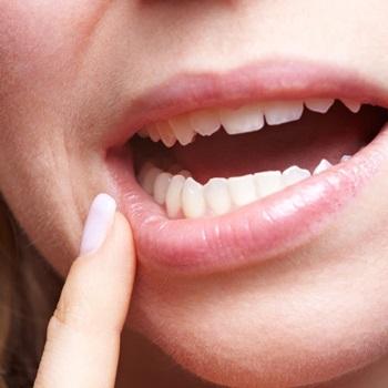 dente do juízo inflamado