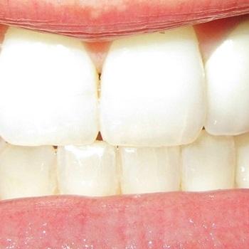 dente esbranquiçado