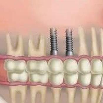 implante dental preço