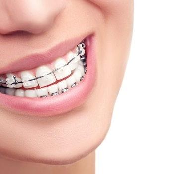 ortodontia preços