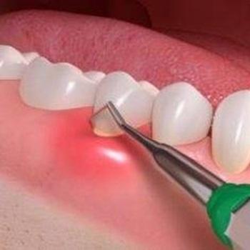 periodontite tem cura e tratamento